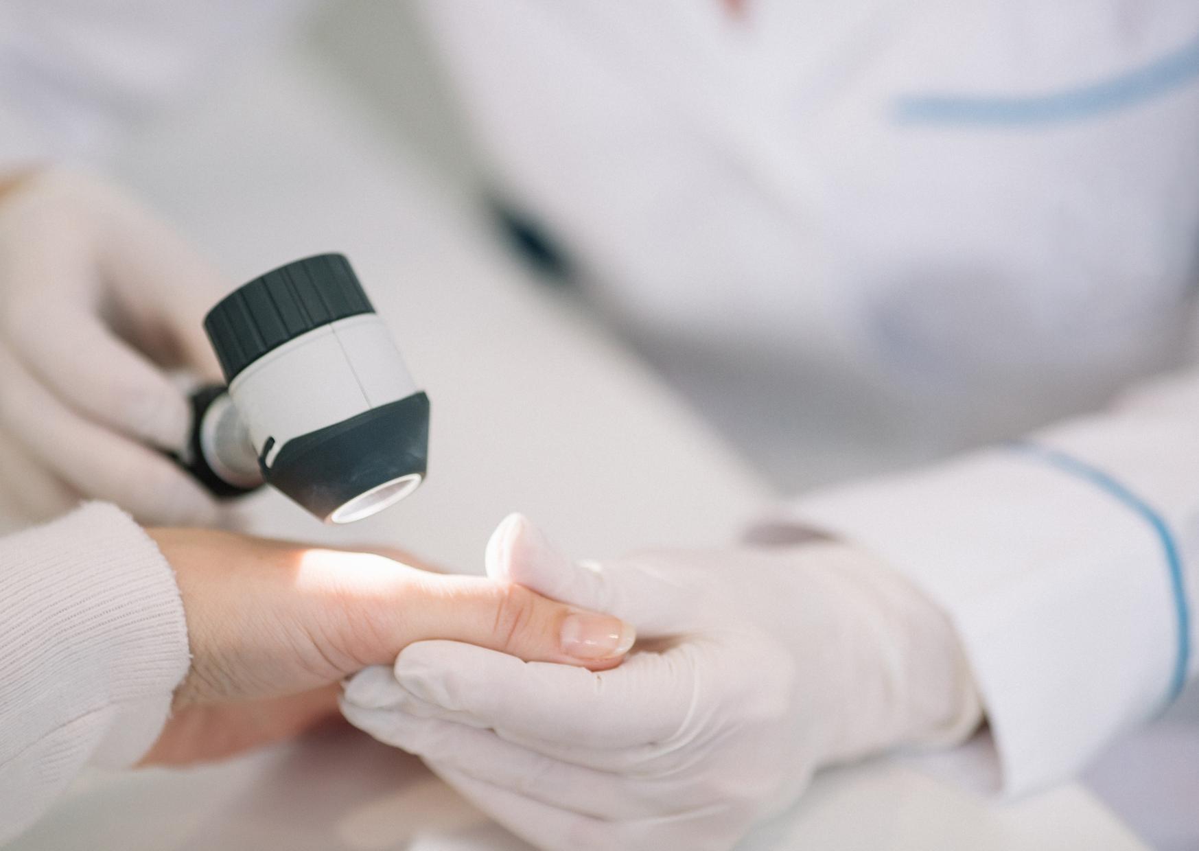 badanie dermatoskopem